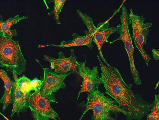 fluorescence microscopy image of cells